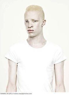 Love albino people.