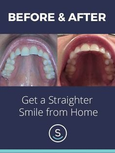 Straighten your smile for up to 70% less than other brands with SmileDirectClub, all from home. See how it works and get started with your free smile assessment and risk-free evaluation today!