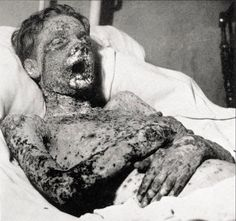 Photograph of patient with smallpox. Smallpox would present with a maculopapular which would progress to raised, fluid-filled blisters. The smallpox virus Variola major was the most serious form and had a mortality rate. Human Oddities, Vintage Medical, Medical History, Interesting History, Medical Conditions, Human Body, Old Photos, The Past, Weird