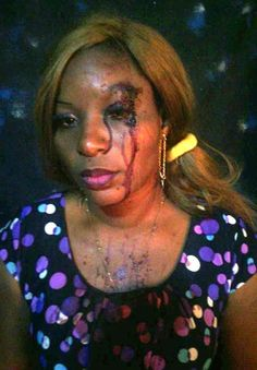 Marvelled Blog: Woman brutally beaten by husband for allegedly gre...