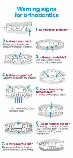 Warning signs for orthodontics Dentaltown - Patient Education Ideas