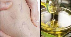 Las varices son curables y el secreto está en el aceite de oliva