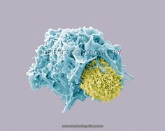 Dendritic cell and lymphocyte, coloured scanning electron micrograph (SEM). Interaction between a dendritic cell (blue) and a T lymphocyte (yellow), two components of the body's immune system. Both are types of white blood cell. T lymphocytes recognise a specific site on the surface of pathogens or foreign objects (antigens), bind to it, and produce antibodies or cells to eliminate that antigen. Dendritic cells are antigen- presenting cells (APCs), they present antigens to T lymphocytes…
