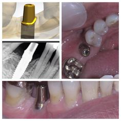 #odontologia #odontologo #dientes #sonrisa #dentistry #dentist #teeth #smile #anatomiadental #odontologiarestauradora #odontologiaestetica #esteticadental #dentalesthetics #odontologiarehabilitadora #rehabilitacionoral #prostodoncia #prosthodontics #protesisdental #protesisfija #coronas #carillas #resinas #pasionporlaodontologia #odontofotosreales #líneaoral aditamentos personalizados Cad Cam @phibo