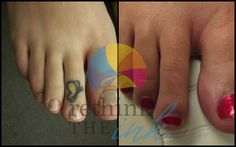 Tattoo Removal Before and After PicturesRethink the Ink Laser Tattoo Removal