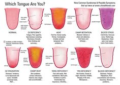 Interesting chart on what your tongue health might mean for your overall wellness. Off to stare at my tongue in a mirror...