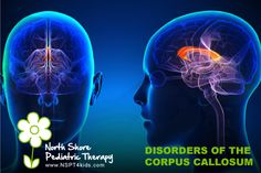 The corpus callosum is the large bundle of nerve fibers that serve as a pathway, connecting the right and left hemispheres of the brain together. Corpus Callosum, Nerve Fiber, Special Needs Kids, Pediatrics, Disorders, Psychology, North Shore, Therapy, Abs