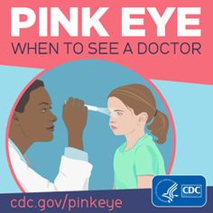 Graphic: Pink Eye - When to See a Doctor