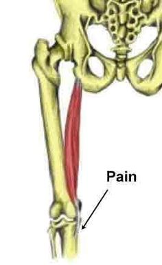 Pes anserine bursitis/tendinopathy, also known as pes anserine tendinopathy is a less common overuse injury causing pain on the inside of the knee. Bursitis Knee, Knee Problem, Knee Exercises, Knee Pain, Physical Therapy, Pta, Anatomy, Bones, Massage