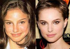 Natalie Portman's smaller nose