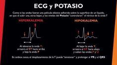 Electrocardiograma y Potasio