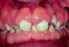 Drug-induced gingival enlargement is classified by the American Academy of Periodontology as a dental plaque-induced gingival disease,  as evidence suggests that existing gingival
