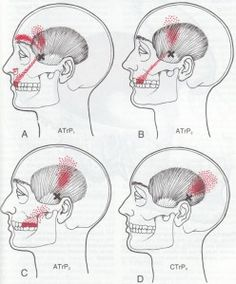 TMJ: Think Muscles for Jaw Pain | AcuTake