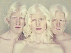 Fotos livro Albinos (Foto: Gustavo Lacerda/Divulgação)