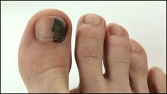 Grab detailed information about black toenail fungus. Use prescription-strength home remedies to get rid of black toenail fungus. Black Toenail Fungus, Fingernail Fungus, Black Toenail Treatment, Get Rid Of Bruise, Fingernail Health, Black Toe Nails, Manicure, Best Skin Care Routine, Purple