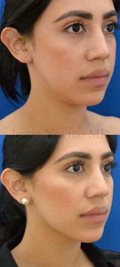 Neck laser liposuction and buccal fat removal by Justin Yovino of Beverly Hills.