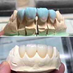 Dental Anatomy, Cute Tooth, Get Whiter Teeth, Dental Technician, Teeth Braces, White Teeth, Cosmetic Dentistry, Smile, Teeth