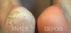 You can use some pretty awesome home remedies to heal your cracked heels. Here are 10 home remedies that will help you fix your dry and cracked heels: Salt, Lemon, Rose Water and Glycerin [. Beauty Care, Diy Beauty, Beauty Hacks, Homemade Beauty, Beauty Ideas, Beauty Secrets, Dry Cracked Heels, Cracked Feet, Cracked Skin