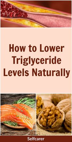 Even if you have low cholesterol levels, having high triglycerides can triple your risk of heart disease and stroke. Fortunately, there are several ways to lower your triglyceride levels if they tend to be high. Lower Cholesterol Naturally, High Cholesterol Diet, Cholesterol Levels, Reduce Cholesterol, Good Health Tips, Health And Fitness Tips, Triglicerides Diet, Health Diet, Health Care