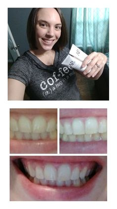 Join my team for free! White Teeth, Join, Free, Products, Beauty Products
