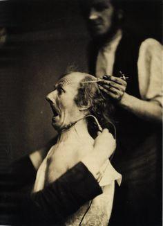 Les expressions électriques du visage par Duchenne de Boulogne expression visage electricite Duchenne Boulogne 02 technologie photographie histoire featured