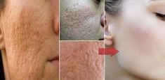 Most people with oily or greasy skin normally have big and visible pores. The pores can be embarrassing and these people will try everything to get rid of them. Open Pores On Face, Big Pores, Nose Pores, Get Rid Of Pores, Minimize Pores, Greasy Skin, Oily Skin, Skin Tightening Mask, Reduce Pore Size
