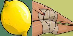 Ból kolan należy do bardzo uciążliwych dolegliwości. Jeżeli mamy podobny problem, będziemy odczuwać go niemal nieustannie. Co więcej, ta przypadłość uniemożliwi nam nawet proste codzienne trudności. Przez bolące kolana niemożliwe będzie sprawne poruszanie się. Czy