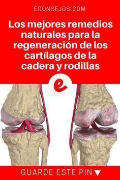 Remedios caderas y rodillad