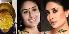 Want Pinkish fair & clean cheeks like Kareena? Mix THIS in water and take the steam - TRENDS Skin Tips, Skin Care Tips, Tumeric For Acne, Beauty Hacks For Teens, Face Cream For Wrinkles, Facial Steaming, Sagging Skin, Face Cleanser, Face Serum