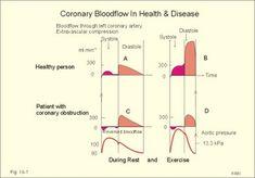 Central Venous Pressure, Physician Assistant School, Cardiac Cycle, Angina Pectoris, Mitral Valve, Myocardial Infarction, Blood Plasma