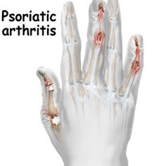 Do you know any information about Psoriatic Arthritis? Please visit this website for more information.