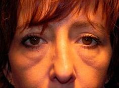 Reduce Eye Bags, Lose Under Eye Wrinkles, Shadowy Circles With These Face Training And Stimulating Regimens