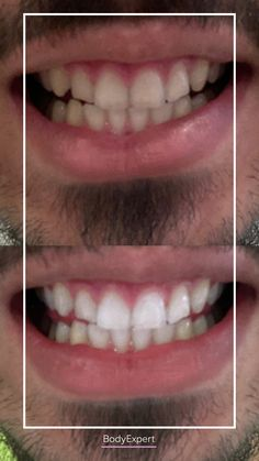 @offjrk got a teeth whitening and loves it ! ❤ Thank you for trusting bodyexpert 🙏 For more information, please contact us !. #Bodyexpert #Testimony #BeforeAfter #SmilePerfect #Whitening #DentalWhitening #TestimonyDentalCare #PerfectTeeth #MedicalTourism #DentalCare #DentalClinics #Turkey #Istanbul #Hollywoodsmile #Laser Medical Care, Dental Care, Perfect Teeth, Teeth Care, Hair Transplant, Clinique, Teeth Whitening, Beauty Care, Turkey
