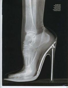 Intenta usar tacones más cortos. Te harán la vida más sencilla cuando caminas y evitarás dolores de pies
