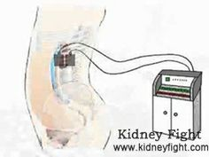 How to Shrink #Kidney Cyst with Hot Compress Therapy Kidney Cyst refers to round fluid-filled sac in the kidneys. It can both on either or both sides of the kidneys. Today, we mainly talk about hot compress therapy for this disorder. http://www.kidneyfight.com/renal-cyst-treatment/438.html