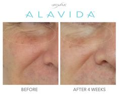 We are proud of the #LWAlavida Regenerating Trio and the results our members have shared with us! Our skincare line reduces the appearance of fine lines and wrinkles, brightens skin, reduces discoloration, and hydrates 24/7.