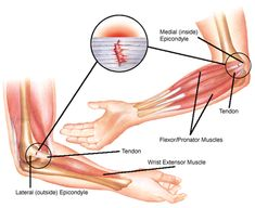 Epicondylitis – Causes, Symptoms, Diagnosis, Treatment and Ongoing care Basics Description Tendon injury characterized by pain and tenderne. Hand Therapy, Massage Therapy, Physical Therapy, Massage Classes, Tendinitis Elbow, Extensor Muscles, Meridian Massage, Elbow Pain, Hip Problems