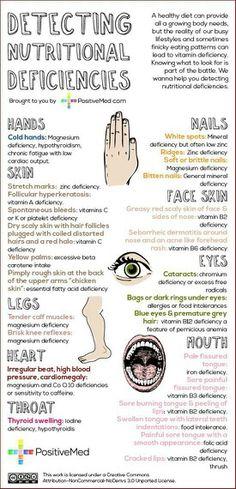 enfermedades ocasionadas por acido urico algun remedio para la gota o acido urico gota pie tratamiento