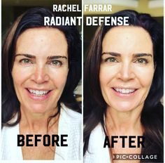 Blackhead Remover, Rodan And Fields, Rocks, Skincare, Skincare Routine, Skins Uk, Stone, Skin Care, Asian Skincare