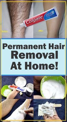 Chin Hair Removal, Upper Lip Hair Removal, Permanent Hair Removal Cream, Underarm Hair Removal, Best Facial Hair Removal, Best Hair Removal Products, Hair Removal Diy, At Home Hair Removal, Hair Removal Methods