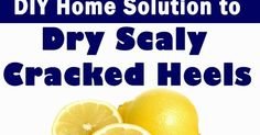 ABCDIY: DIY Home Solution to Dry Scaly Cracked Heels