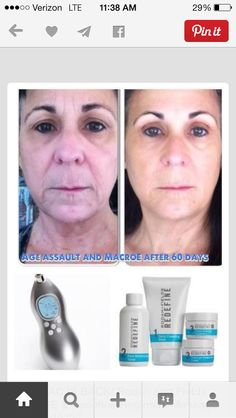 Rodan and Fields - Macro E and Redefine.  Jillball.myrandf.com