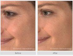 Botox Crowsfeet | #Botox Filler | Botox Results | Botox Treatment | Botox Treatments