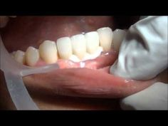 Impacted wisdom teeth removal cost health resources dental,poor dental health reasonable dental care,deep cleaning price ways to relieve tooth pain.