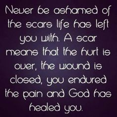 Scars are real. <3 E