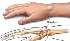 3 Efectivos Remedios Naturales para Curar Los Quistes Ganglionaries