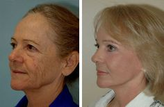 upper eyelid surgery recovery time upper eyelid surgery recovery time