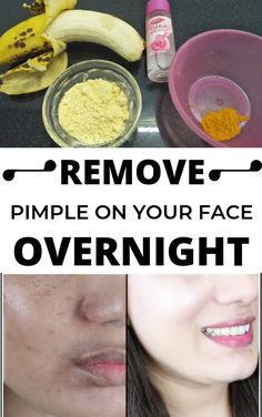 Acne as well as Pimples Remedies. Natural ways to eliminate as well as stop Acne. Remove Pimples Overnight, How To Remove Pimples, Pimples Remedies, How To Grow Eyebrows, Skin Problems, Acne Treatment, Skin Treatments, Teeth Whitening, Skin Care Tips