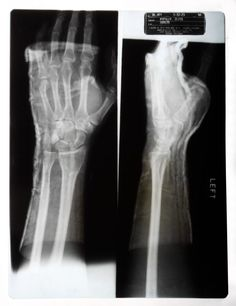 """Elvis Presley's x-ray of his fractured left arm wrist from September 12, 1973   """"The actual break in his arm was obtained during a karate session and the plate of the x-ray taken later has Elvis Presley's address and hospital details embedded in the negative, including the radiologist's name. It sold in 2008 at a Farm Bureau auction for $3,500. At the time of this posting (July 2015), it was listed on an auction site having been sold for $9,375."""""""