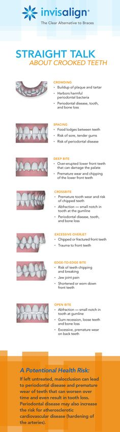 Crooked teeth can harbor additional bacteria, leading to periodontal disease.